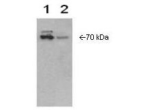 Western Blot